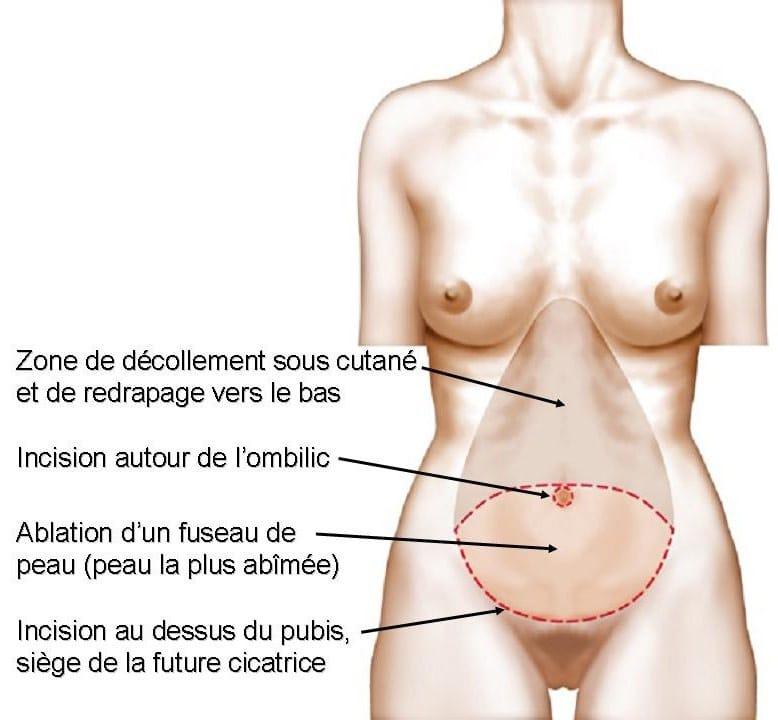 plastie abdominale Lyon