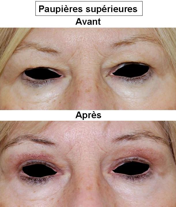 Fotoepilyatsiya et laser epilyatsiya sur la personne