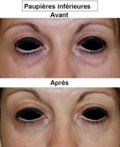 Chirurgie des paupières Lyon : Dr Bayol, blépharoplastie à