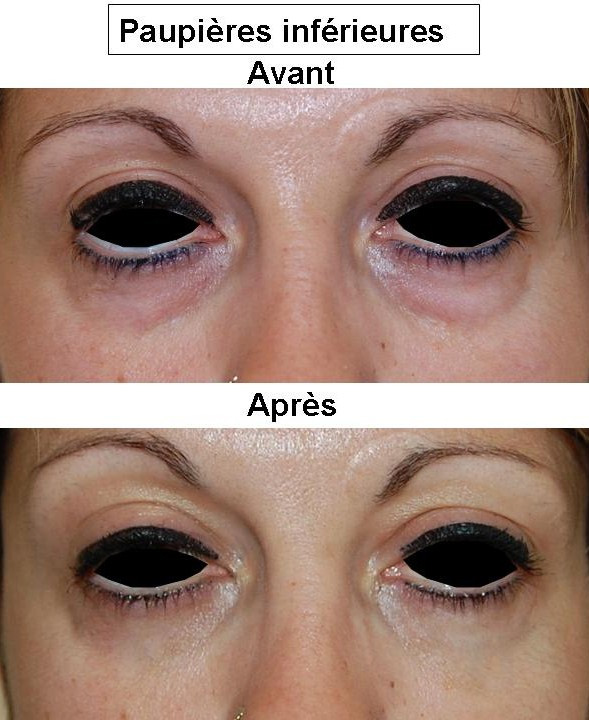 chirurgie des paupi res lyon dr bayol bl pharoplastie lyon. Black Bedroom Furniture Sets. Home Design Ideas