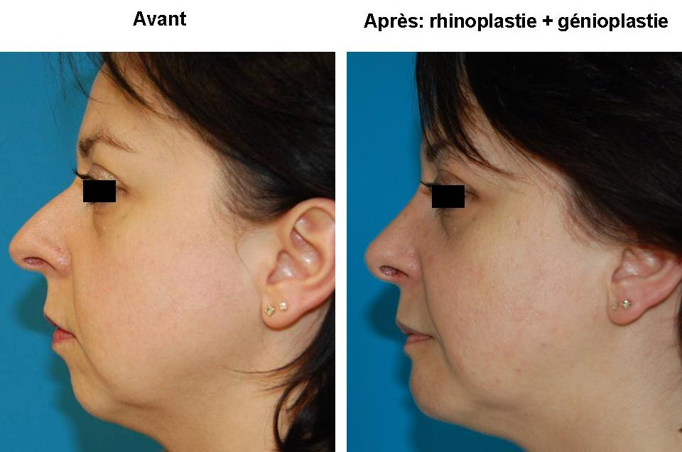 chirurgie du nez lyon dr bayol intervention chirurgicale rhinoplastie lyon. Black Bedroom Furniture Sets. Home Design Ideas