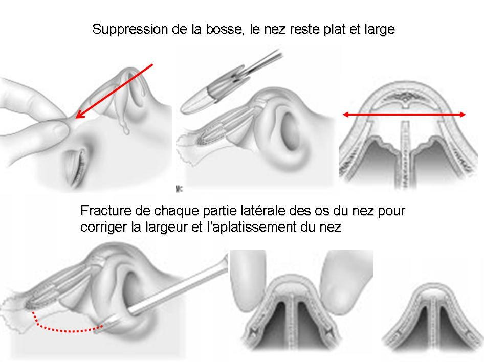 rhinoplastie bosse