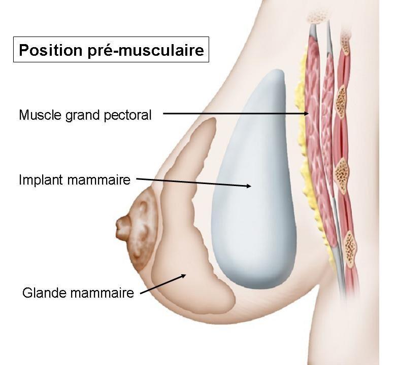 prothèses mammaires aix les bains chambery savoie