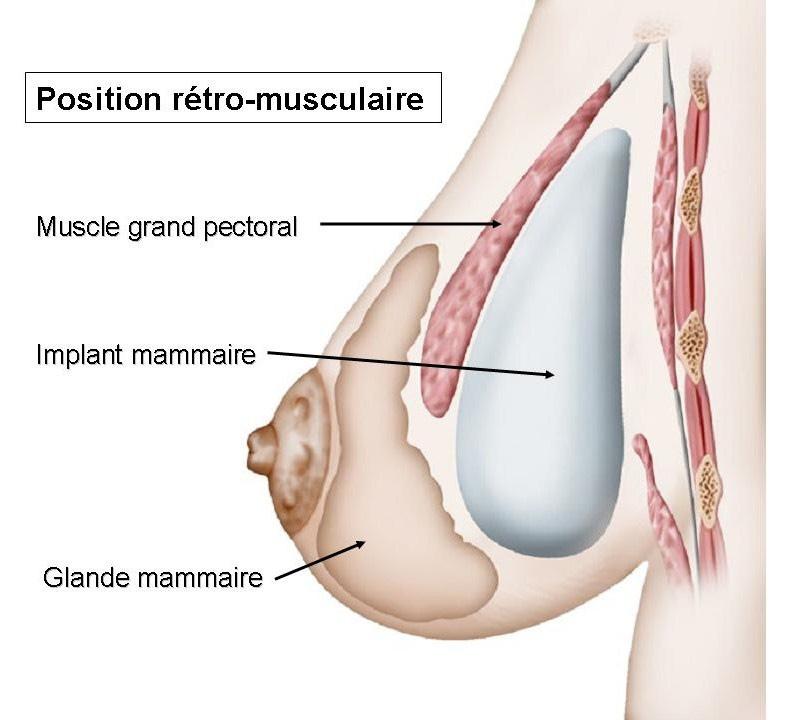 prothèses mammaires annecy haute savoie