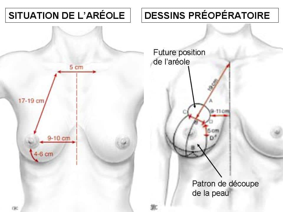 mastopexie Lyon