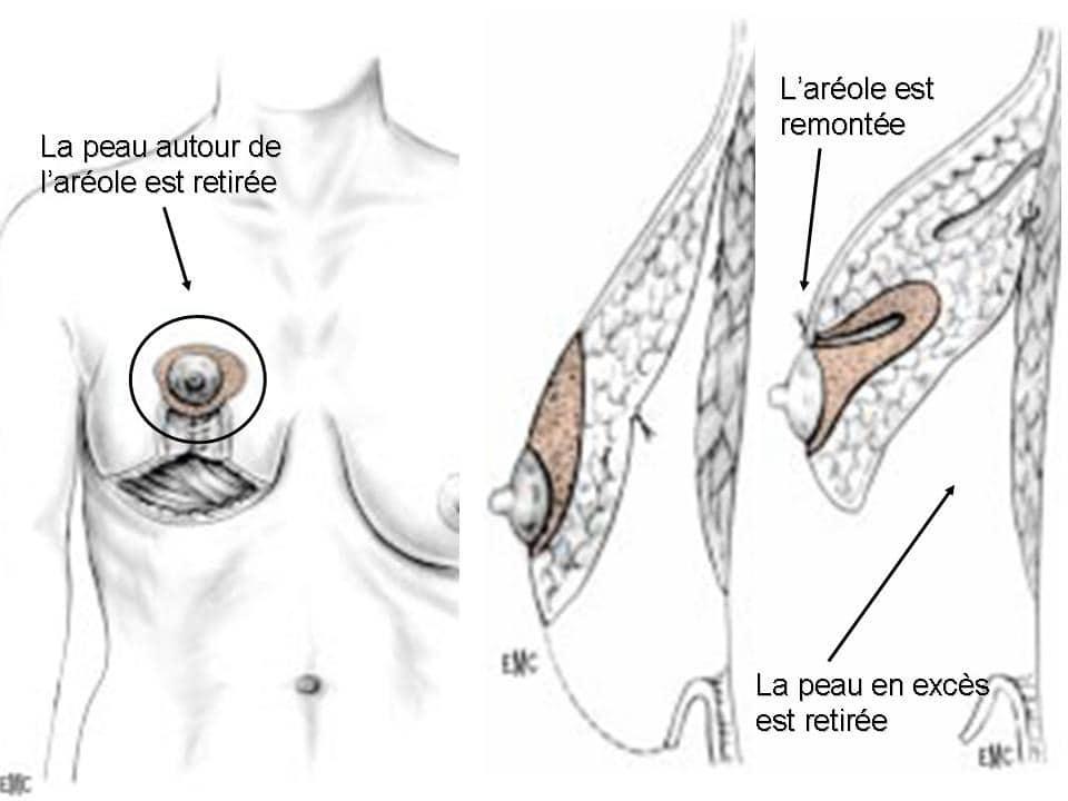 cure de ptose mammaire Lyon