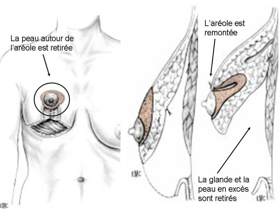 reduction mammaire lyon dr bayol chirurgie mammaire lyon. Black Bedroom Furniture Sets. Home Design Ideas