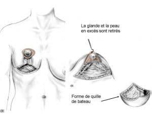 réduction mammaire Lyon