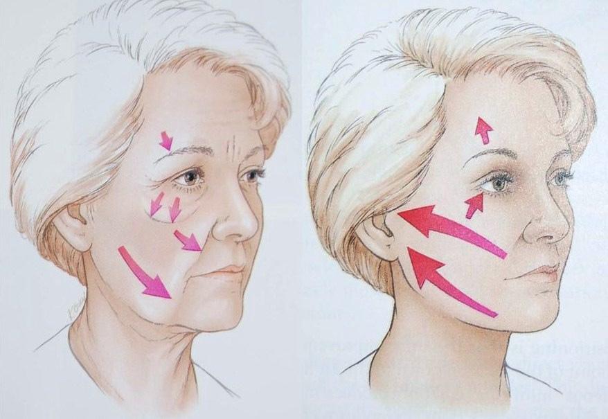 vieillissement du visage