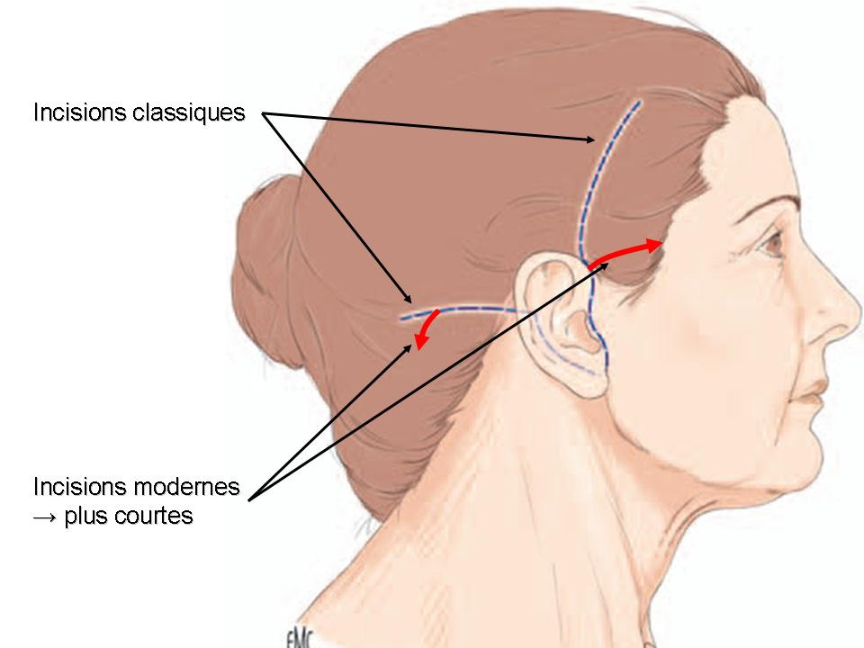 cicatrice de lifting cervico-facial Lyon