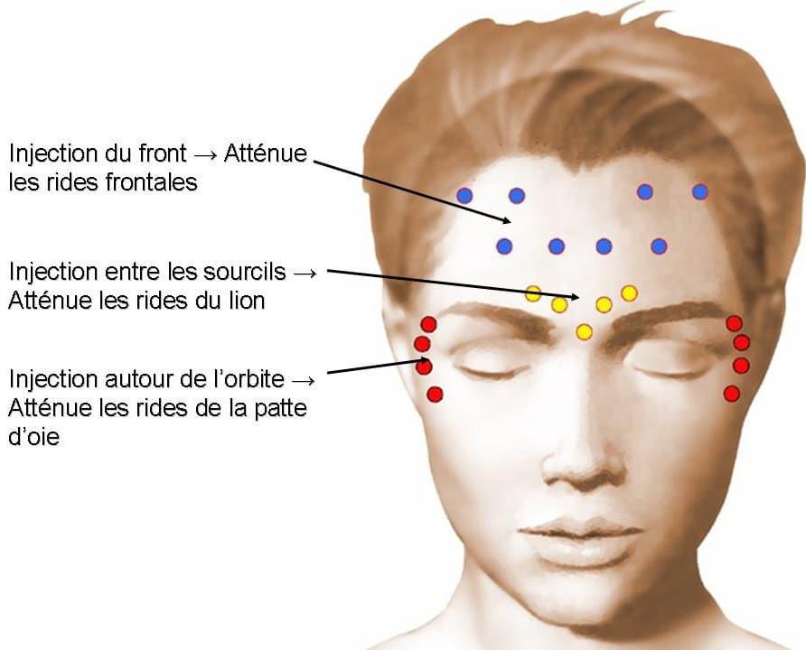 injection botox lyon dr bayol chirurgien esth tique du visage lyon. Black Bedroom Furniture Sets. Home Design Ideas