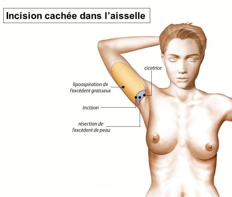 plastie brachiale Lyon