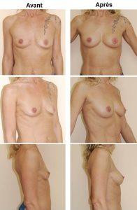 Lipostructure esthétique des seins - cas n° 1