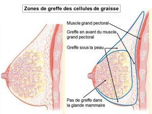 Zones de greffe des cellules de graisse