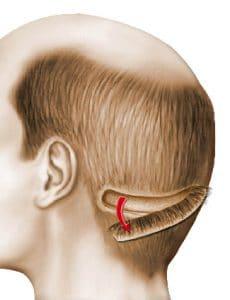 greffe de cheveux technique FUT Lyon
