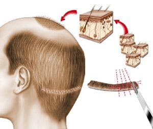 micro greffe de cheveux technique FUT Lyon