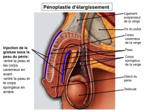 pénoplastie d'élargissement Lyon