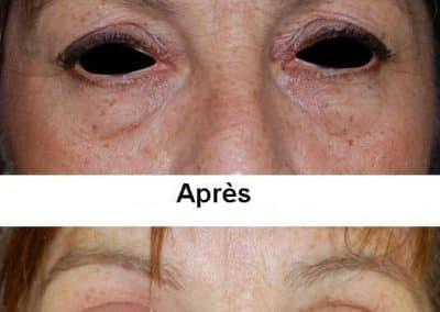 blepharoplastie-1