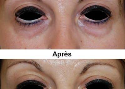blepharoplastie-4
