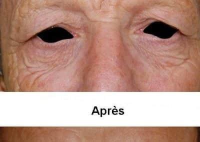 blepharoplastie-5