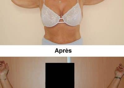 bras-1