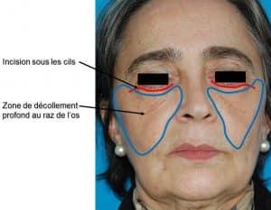 Incision et décollement lifting centro-facial