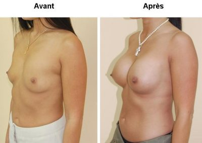 implants-mammaires-4