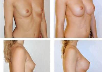 implants-mammaires-cas-3-bis