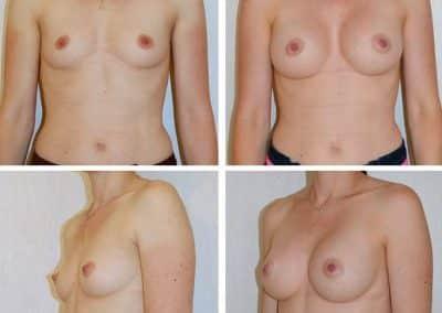 implants-mammaires-cas-5