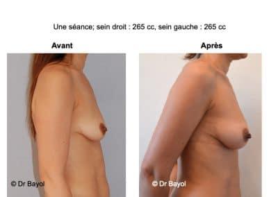 augmentation mammaire sans prothèses Aix-les-Bains