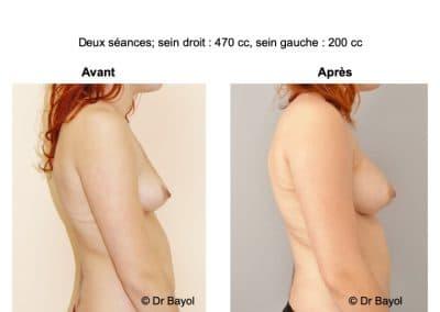 augmentation mammaire sans prothèses Annecy
