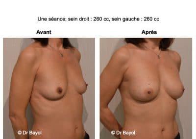 augmentation mammaire sans prothèses Lyon