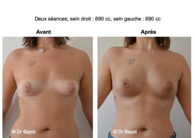 augmentation mammaire sans implants Aix-les-Bains