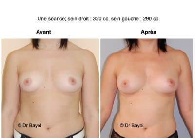 augmentation mammaire sans implants Annecy