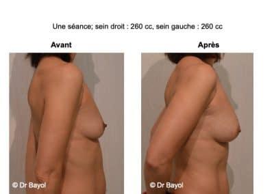 augmentation mammaire sans implants Lyon