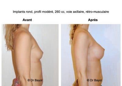 bon chirurgien esthétique des seins Lyon