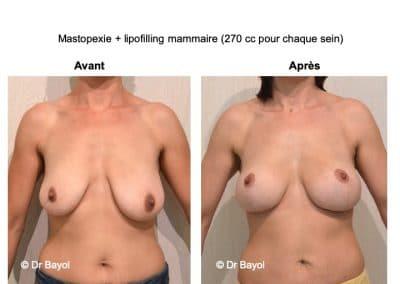 bon chirurgien lifting des seins Lyon