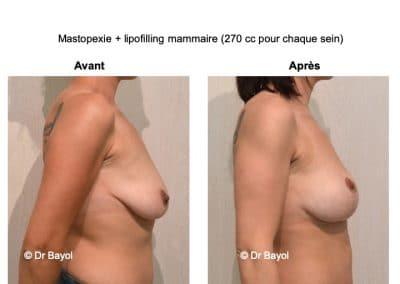 bon chirurgien lifting mammaire Lyon