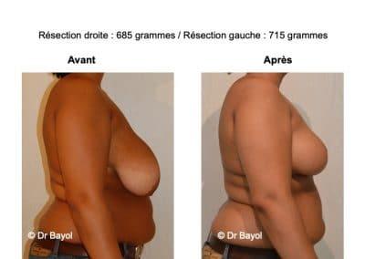 bon chirurgien plastie mammaire de réduction Lyon