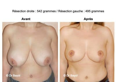 bon chirurgien réduction mammaire à Lyon