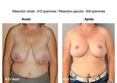 bon chirurgien réduction mammaire Aix-les-Bains