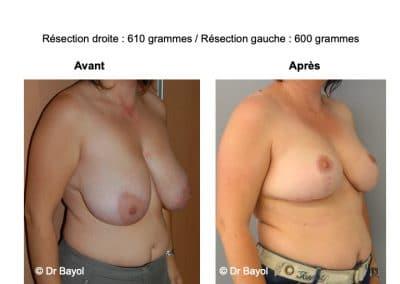 bon chirurgien réduction mammaire Annecy