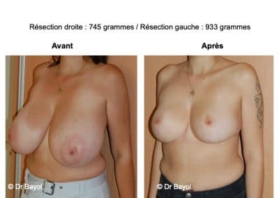 bon chirurgien réduction mammaire Annemasse