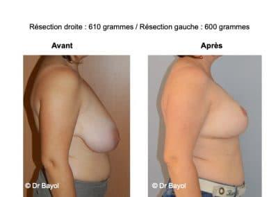 bon chirurgien réduction mammaire Grenoble