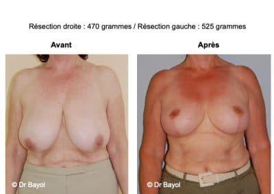 bon chirurgien réduction mammaire Lyon