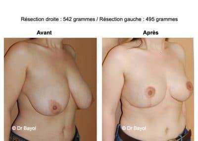 bon chirurgien reduction mammaire Lyon