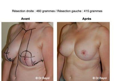 chirurgie de l'hypertrophie mammaire Lyon
