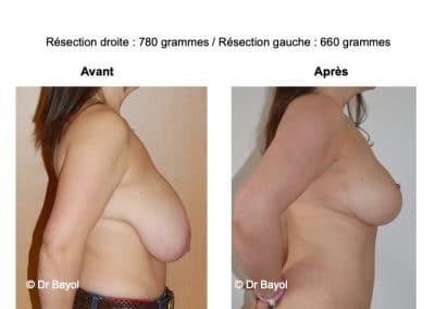 chirurgie de réduction mammaire Lyon