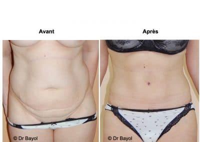 chirurgie esthétique de la silhouette Lyon