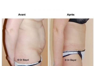 chirurgie esthétique du corps Lyon